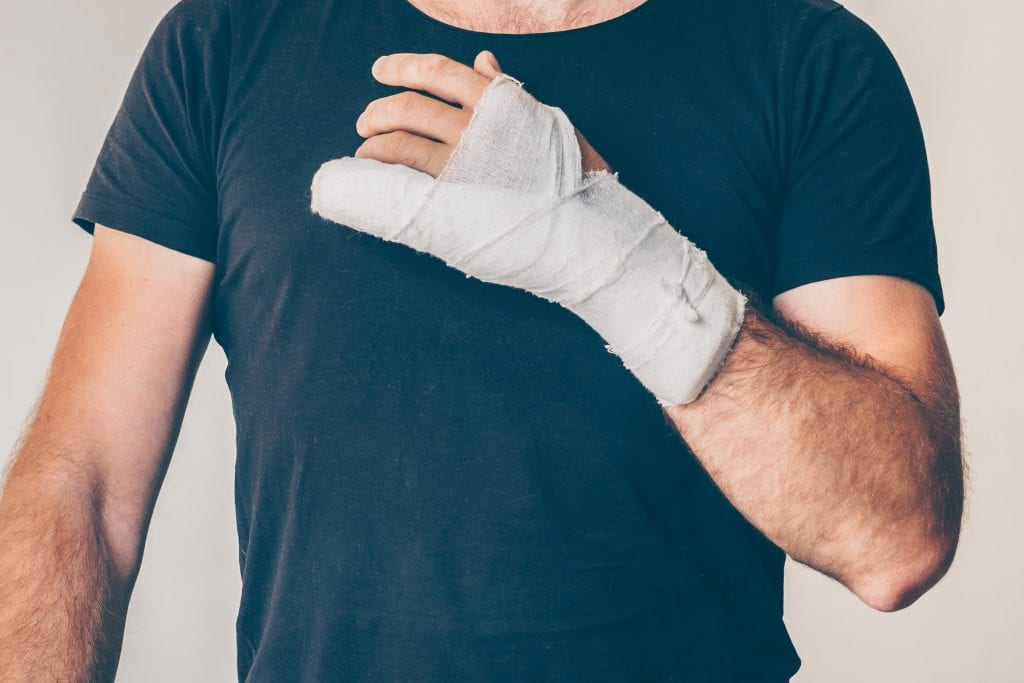 man with industrial hand injury