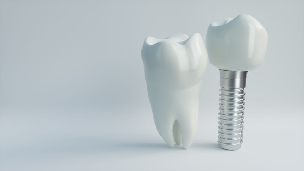 Model of human molar complete, model of similar molar with titanium screw replacing root
